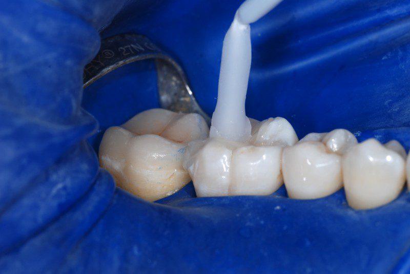 Tecnica adesiva per la cementazione dei denti in ceramica