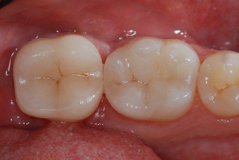 Estetica e resistenza dei denti posteriori