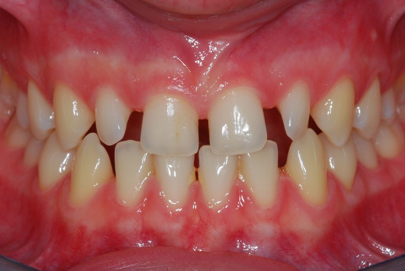 Elementi dentari frontali