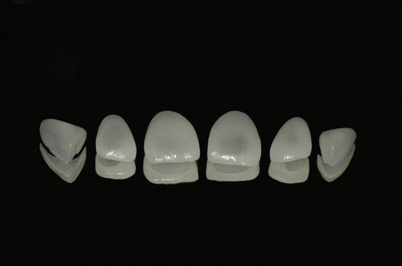 Faccette in ceramica